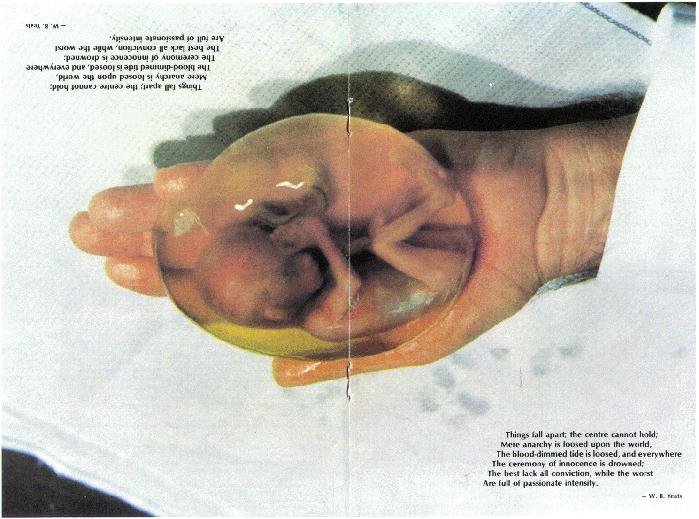 Фото аборта крупно в хорошем качестве 720 фотоография
